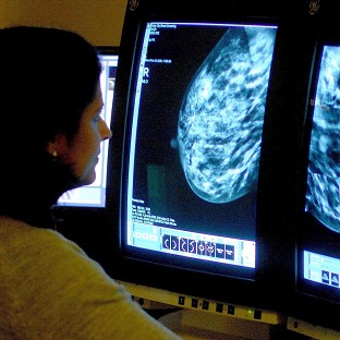 Cancer death rates are set to fall by nearly 17% by 2030 with better diagnosis and treatment, said Cancer Research UK